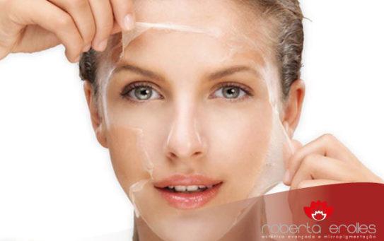 Peeling Químico é uma ótima opção para tratamento da pele